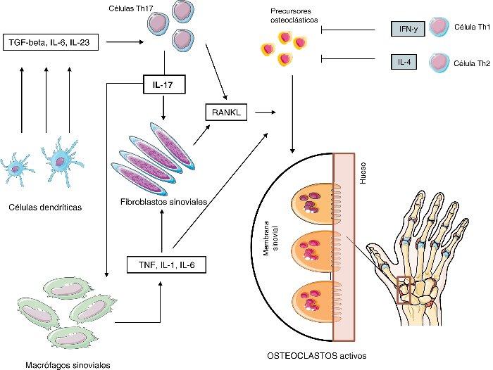 Resultado de imagen de Interleucinas en la fisiopatología de la artritis reumatoide: más allá de las citocinas proinflamatorias